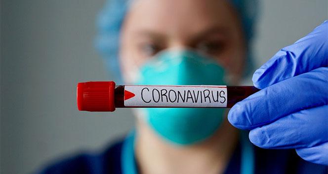 Koronavirüs ile Mücadele Eden Doktordan Acı İtiraf!